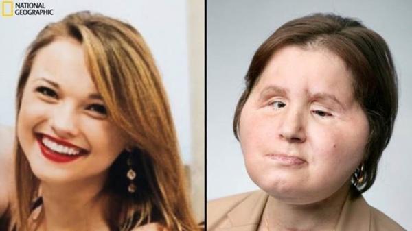 Antes e depois do transplante de rosto: paciente mais jovem da cirurgia experimental sonha ir para a faculdade