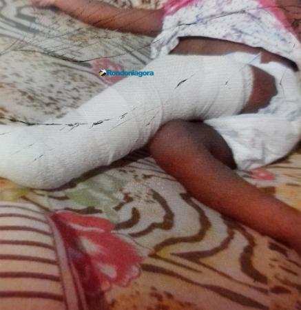 Monitorado por tornozeleira é preso com 7 Kg de maconha após fraturar perna da própria filha de 1 ano