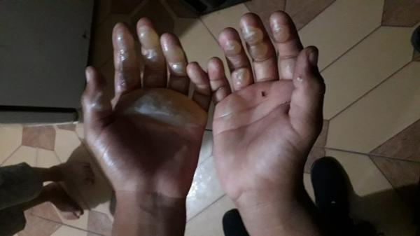 Mulher espanca e queima as mãos do filho de 9 anos com ferro de passar