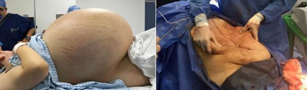 Médicos retiram cisto ovariano de 32 quilos de paciente