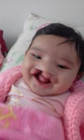 Rondônia - Campanha tenta ajudar criança com malformação nos lábios e céu da boca a conseguir cirurgia